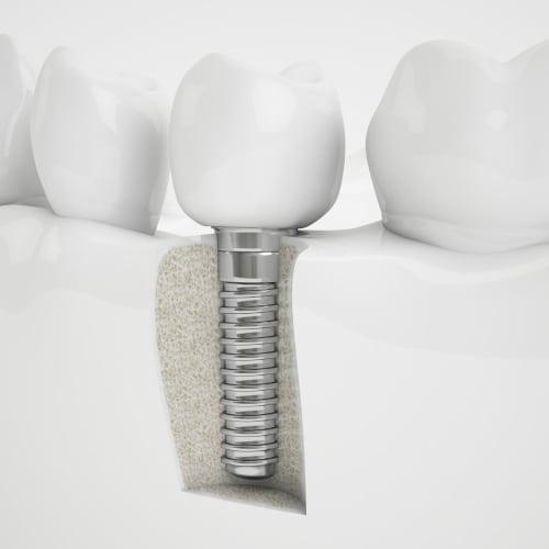 Implantat Beispiel